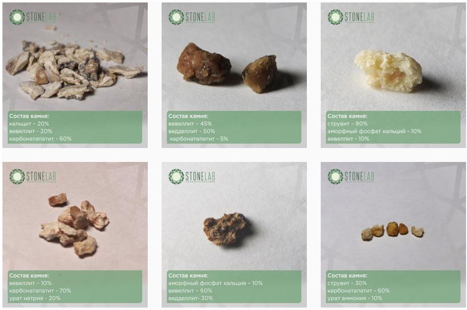 видео виды камней в почках фото и описание подробные